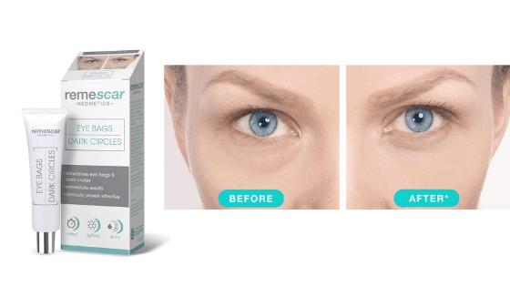 recensione remescar eye bags trattamento per borse e occhiaie scure